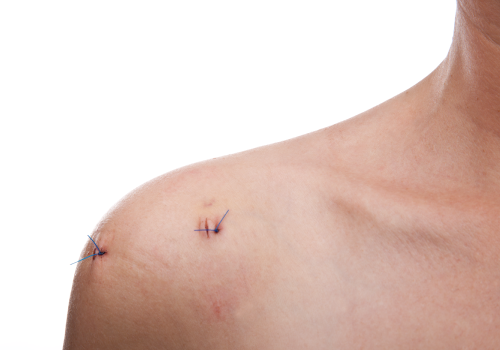 Post-Operative Management of Selected Shoulder Conditions
