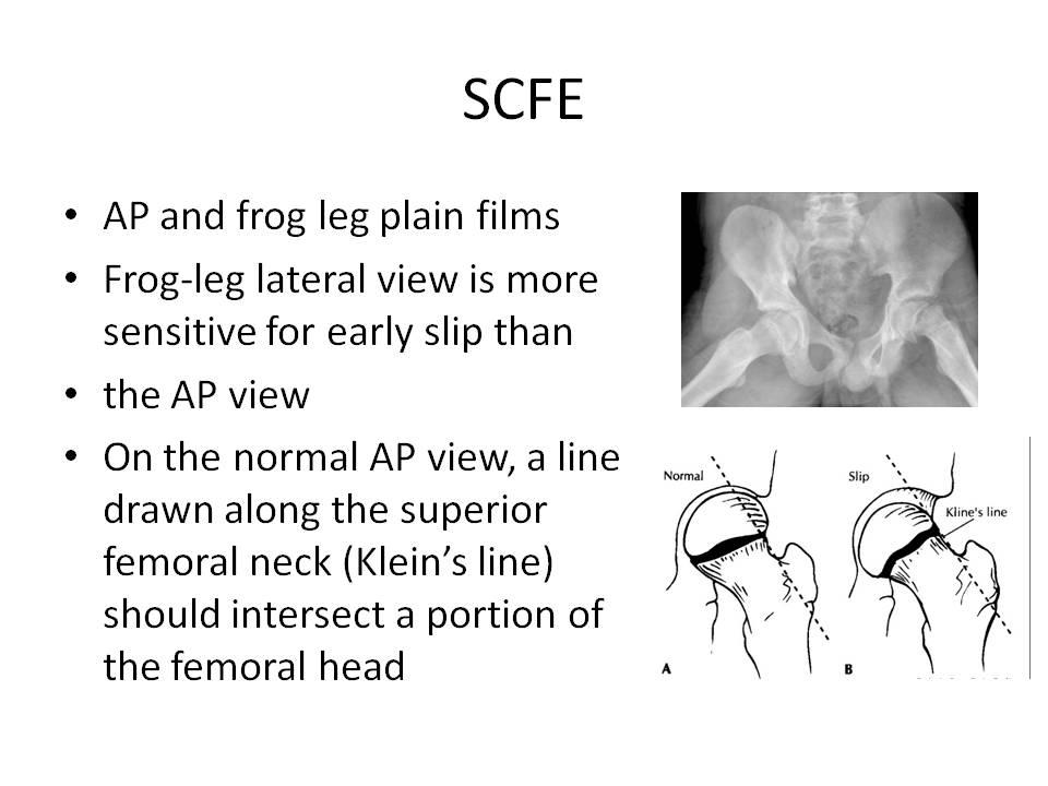 frog leg lab report